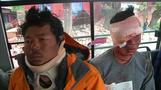 Nepal quake: sherpas injured