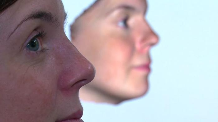 3D tool predicts nose jobs more accurately