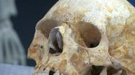 Medieval skeleton gives clues to spread of leprosy