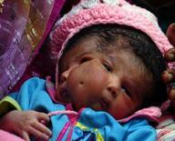 <p>La piccola Lali, nata con due facce, riposa nel villaggio di Saini, vicino a Nuova Delhi, in India REUTERS/Stringer/Files</p>