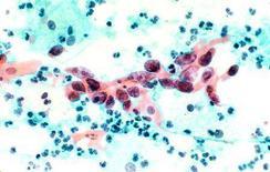 <p>Cellule del carcinoma alla cervice uterina. REUTERS/NCI/Handout</p>
