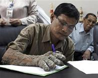 """<p>Dede manipula un bolígrafo durante una demostración ante la prensa en una conferencia después de ser dado de alta del hospital Hasan Sadikin, en Bandung, Indonesia, 25 ago 2008. Un indonesio apodado el """"hombre árbol"""" por las verrugas en forma de nudo que cubren su cuerpo dijo el viernes que su condición había empeorado nuevamente, aunque se mostró esperanzado de recuperarse y encontrar un empleo. REUTERS/Stringer</p>"""