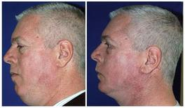 <p>Music executive Jeff Grabow is shown before (L) and after plastic surgery in this combination photo released to Reuters April 7, 2009. REUTERS/Payman Simoni M.D./Handout</p>