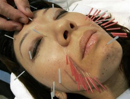 A woman receives facial acupuncture at the Beautyworld Japan trade fair in Tokyo May 20, 2008. REUTERS/Yuriko Nakao