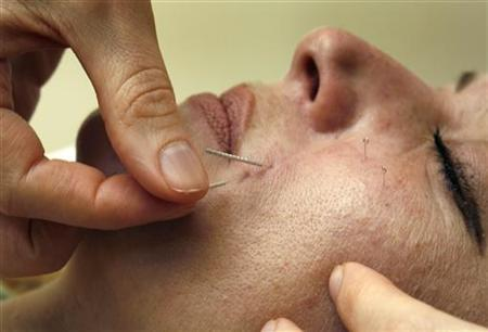 Acupuncture treatment is performed on a patient in Toronto in this July 17, 2008 file photo. REUTERS/Mike Cassese