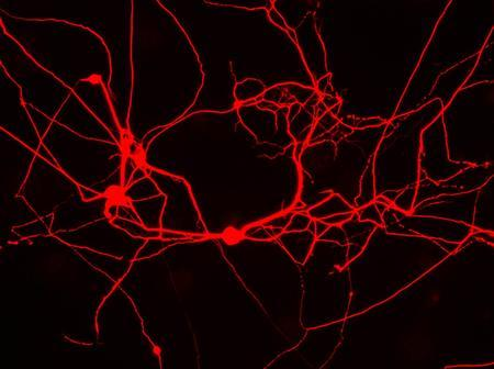 Researchers at Stanford University in California have transformed the ordinary cells of mice directly into nerve cells called neurons using just three genes, in a move they hope can transform the field of regenerative medicine. These cells are stained red with a compound that identifies them as neurons. REUTERS/Thomas Vierbuchen/Marius Wernig, Institute for Stem Cell Biology and Regenerative Medicine at Stanford University