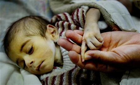 An eight-month-old Iraqi baby suffering from leukaemia holds his mother's hand on January 13, 2003. REUTERS/Peter Andrews