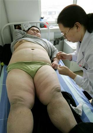 17-year-old patient Du Bing from Hebei Province receives acupuncture treatment from a Chinese doctor at the Aimin Fat Reduction Hospital in the Chinese city of Tianjin, March 21, 2005 file photo. REUTERS/Mark Ralston