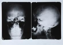 <p>A set of X-rays of physicist Albert Einstein's head is shown in this undated publicity photo released to Reuters on November 8, 2010. REUTERS/Juliens Auctions/Handout</p>