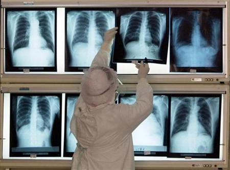 A nurse checks chest x-rays at National Taiwan University Hospital in Taipei, May 26, 2003. REUTERS/Richard Chung