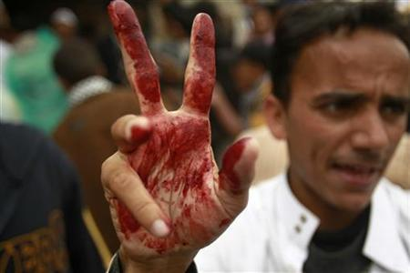 An anti-government protester, whose hand is stained with blood, flashes the victory sign as he shouts after carrying an injured fellow protester in Sanaa March 18, 2011. REUTERS/Khaled Abdullah