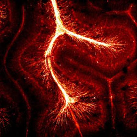 An image of superhighways in the brain, with the gold color showing a protein making up myelin, which speeds the conduction of electrical signals along nerve cells, allowing us to think more quickly. REUTERS/Courtesy of Professor David Attwell/UCL Neuroscience, Physiology & Pharmacology