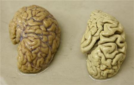 One hemisphere of a healthy brain (L) is pictured next to one hemisphere of a brain of a person suffering from Alzheimer disease, at the Morphological unit of psychopathology in the Neuropsychiatry division of the Belle Idee University Hospital in Chene-Bourg near Geneva March 14, 2011. REUTERS/Denis Balibouse