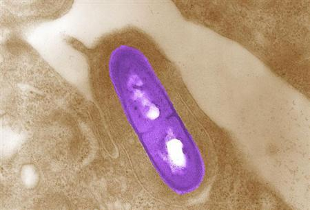 Listeria bacteria in a microscopic image courtesy of the Center for Disease Control and Prevention. REUTERS/Handout
