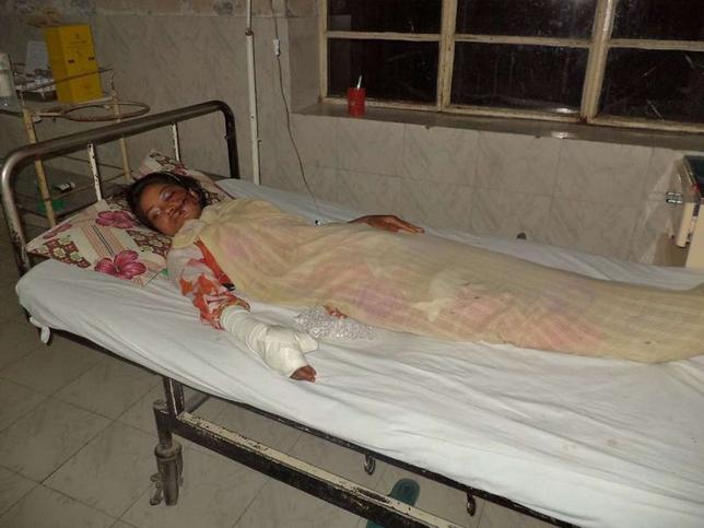 Saba Maqsood, 18, lies on a hospital bed in Hafizabad in Punjab Province June 5, 2014. REUTERS/Yaqoob Shahzad