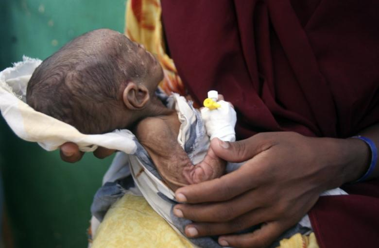 A five-month-old malnourished child awaits medical tests at the paediatric ward of the Banadir hospital in Somalia's capital Mogadishu December 17, 2012. REUTERS/Ismail Taxta
