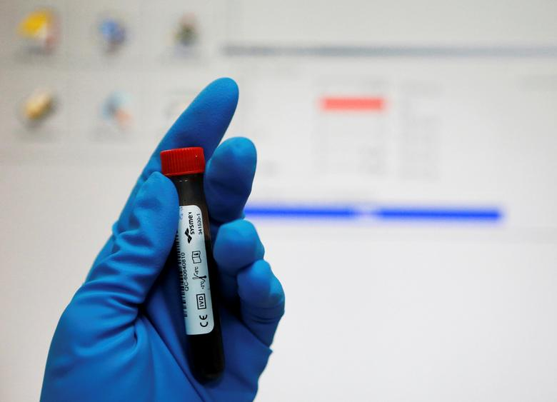 A technician holds a test tube with a blood sample at the Russian anti-doping laboratory in Moscow, Russia, May 24, 2016. REUTERS/Sergei Karpukhin