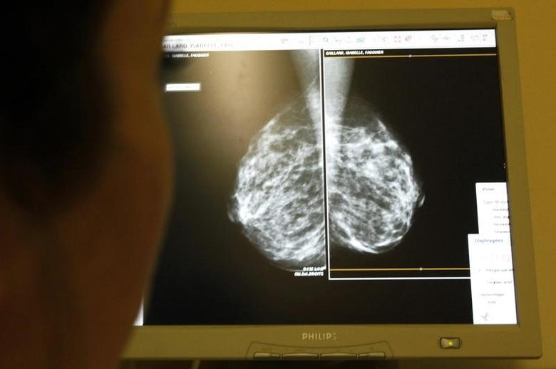A doctor exams mammograms, a special type of X-ray of the breasts, which is used to detect tumours as part of a regular cancer prevention medical check-up at a clinic in Nice, south eastern France January 4, 2008.       REUTERS/Eric Gaillard