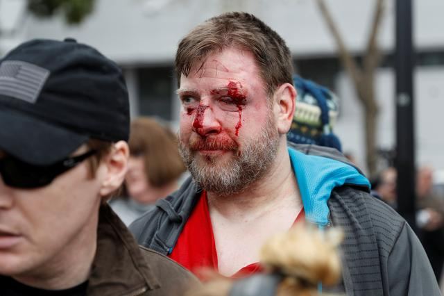 A bloodied supporter of President Trump is seen after a ''People 4 Trump'' rally and counter-protest turned violent in Berkeley, California. REUTERS/Stephen Lam