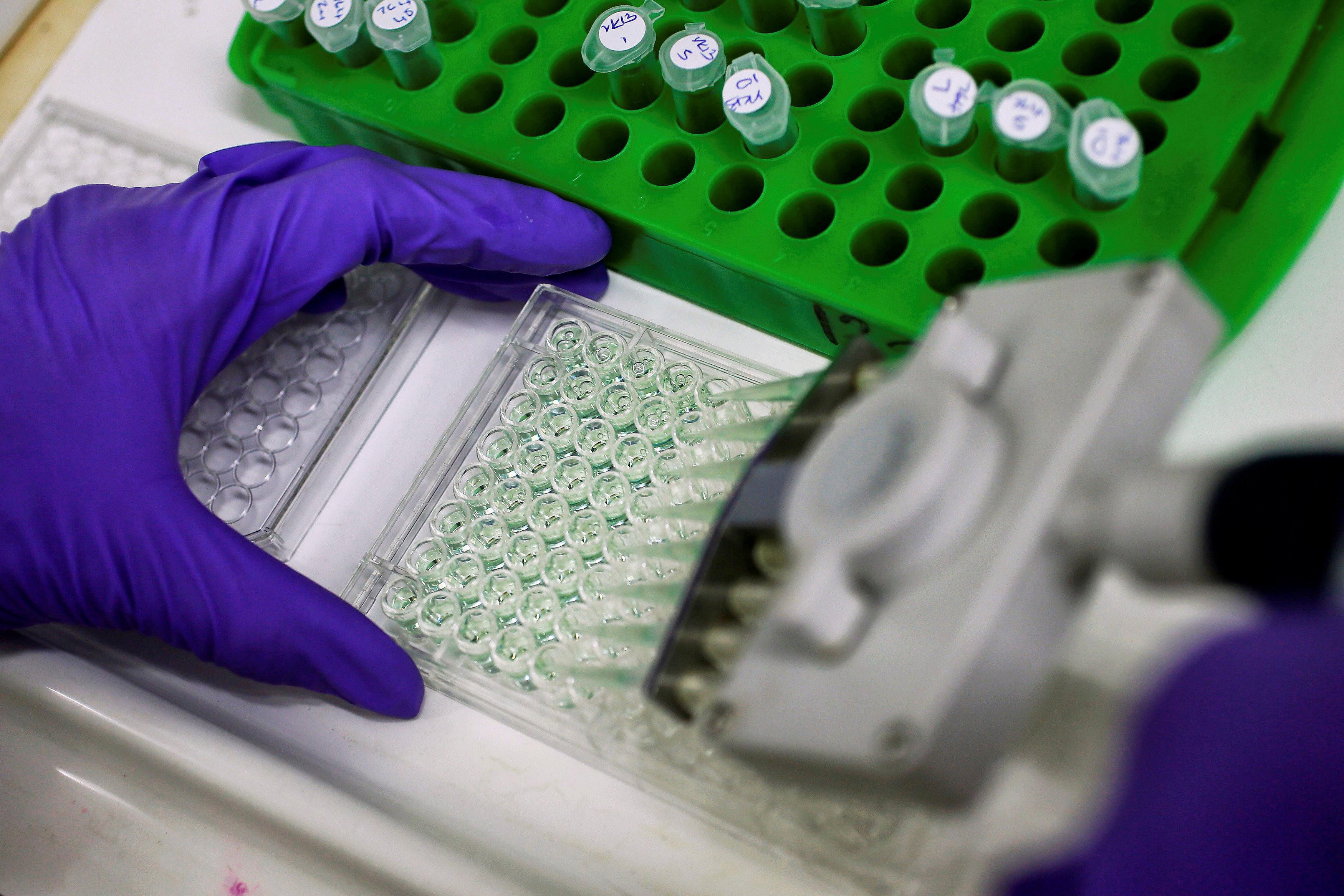 A scientist prepares protein samples for analysis in a lab at the Institute of Cancer Research in Sutton, Britain, July 15, 2013.   Stefan Wermuth