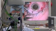 First human test of robotic eye surgery hailed a success