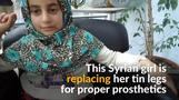 Disabled Syrian girl ditches tin legs for prosthetics
