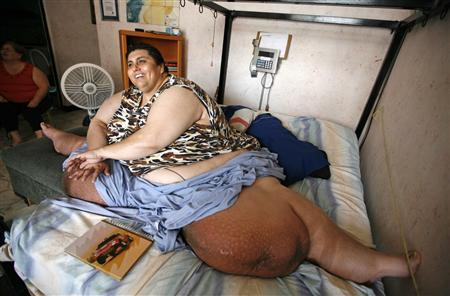World S Most Obese Man Vies For Different Record Reuters