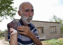 <p>Житель контролируемого Тбилиси грузинского села Никози демонстрирует рану, полученную в ходе ночной перестрелки, Южная Осетия, 2 августа 2008 года. Несколько человек погибли и были ранены в ходе очередных обстрелов сел на территории бывшей грузинской автономии, де-факто независимой Южной Осетии, в которых стороны обвиняют друг друга. (REUTERS/Nodar Skhvirashvili)</p>