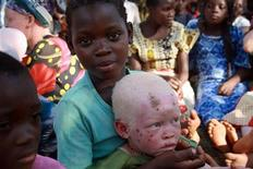 <p>Un bimbo albino a Kabanga, in Tanzania. . REUTERS/Alex Wynter/IFRC/Handout (TANZANIA CONFLICT SOCIETY) FOR EDITORIAL USE ONLY. NOT FOR SALE FOR MARKETING OR ADVERTISING CAMPAIGNS</p>