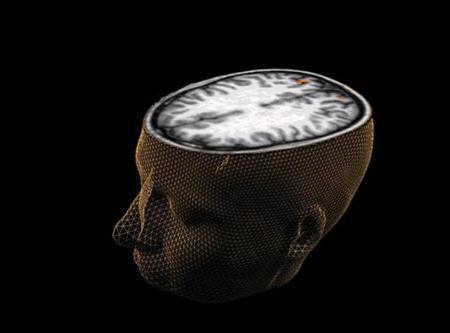 An undated image of the human brain taken through scanning technology. University of California, Santa Barbara/Handout