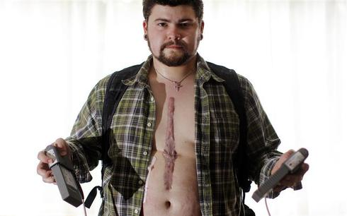Living with a bionic heart