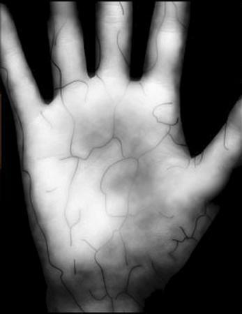 A scan of a patient's palm is pictured in this undated handout photograph released on July 27, 2011. The new biometric technology employed by New York University's Langone Medical Center was expected to speed up patient check-ins and eliminate medical errors. REUTERS/NYU Langone Medical Center/Handout