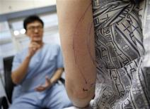 <p>A plastic surgeon (L) speaks to his patient who travelled from Australia to Seoul to get liposuction at the BK DongYang Plastic Surgery Clinic in Seoul October 4, 2011. REUTERS/Lee Jae-Won</p>