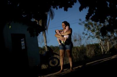 Twin Zika babies