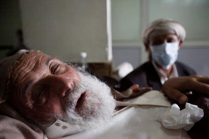 An old man infected with cholera lies on the bed at a hospital in Sanaa, Yemen, May 12, 2017. Mohamed al-Sayaghi