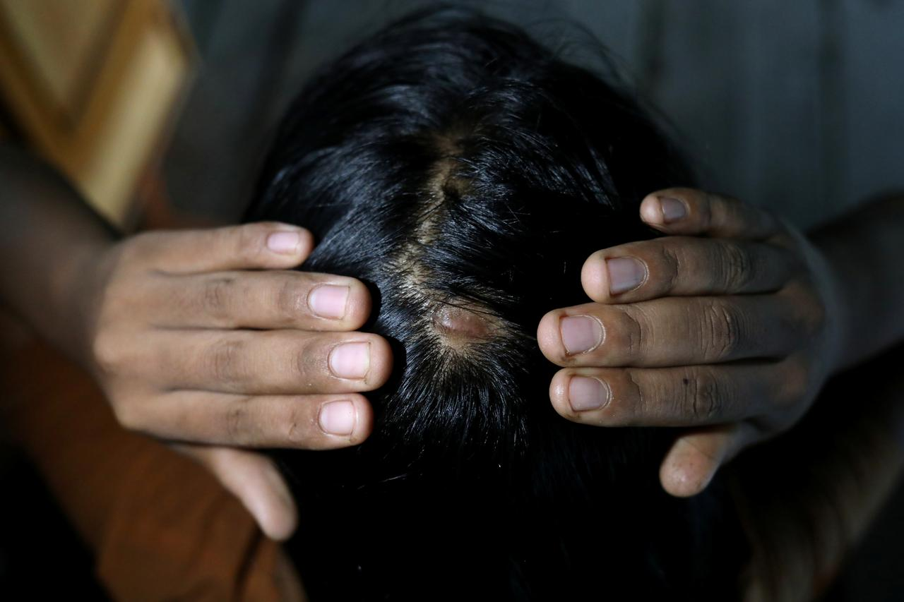 Image result for 'Until her bones are broken': Myanmar activists fight to outlaw domestic violence