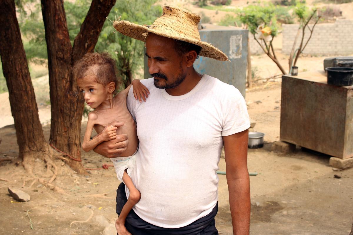 Die oorlog van Jemen het 'n pa se werkroete gesny, en sy kleuter is honger